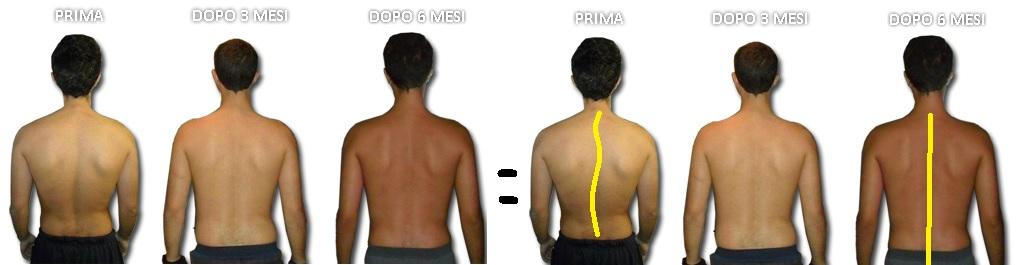 La scoliosi (idiopatica) si corregge definitivamente con il Meccanismo che Sostiene Corpo e Psiche.