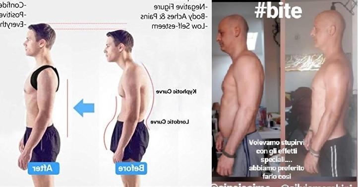 Correttori di postura, trattamenti posturali, ginnastiche posturali: un errore di terminologie e di metodo.